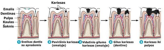 Dantų kariesas